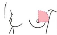 rak piersi - kwadrantektomia